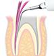 Endodontics/E5 -varios