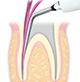 Endodontics/E6 -varios