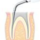 Endodontics/E7D -varios